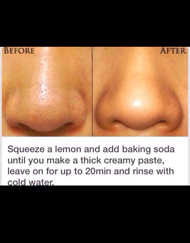 💕 Amazing Way To Remove Black Heads!💕