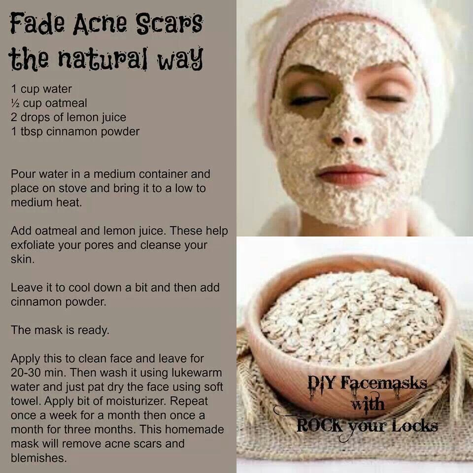Natural Products That Remove Acne Scars