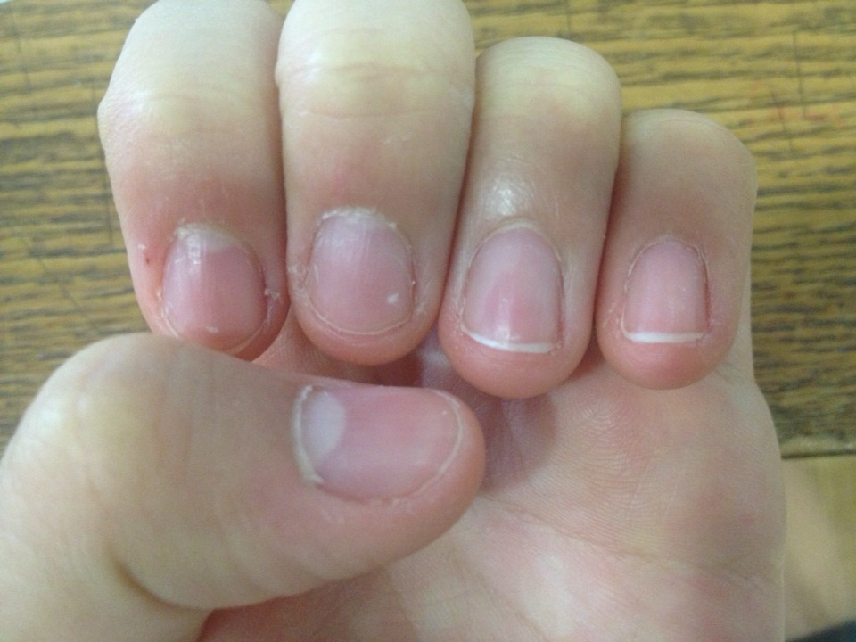 how to stop nails growing so fast