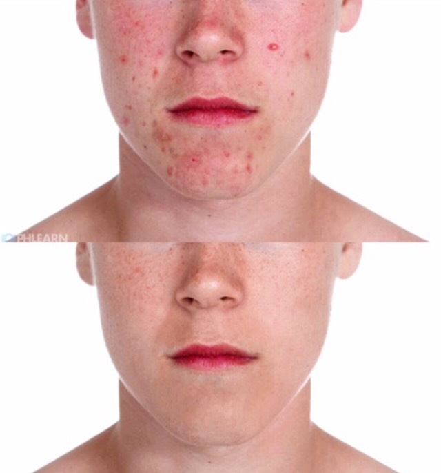 Permanently remove Acne From Your Skin💯👍