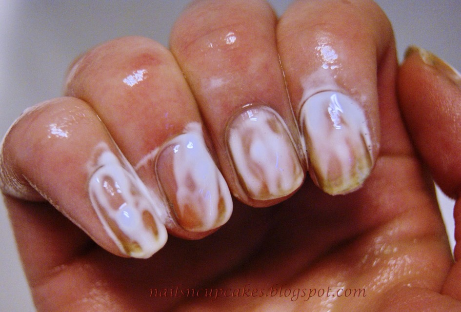 Get Rid Of Yellow Nails!