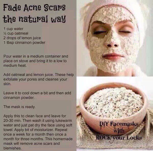 how to get rid of bacne scars naturally