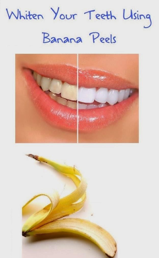 Banana for teeth