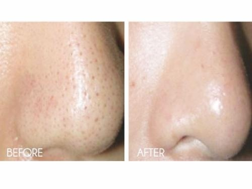 how to get rid of pores on breasts