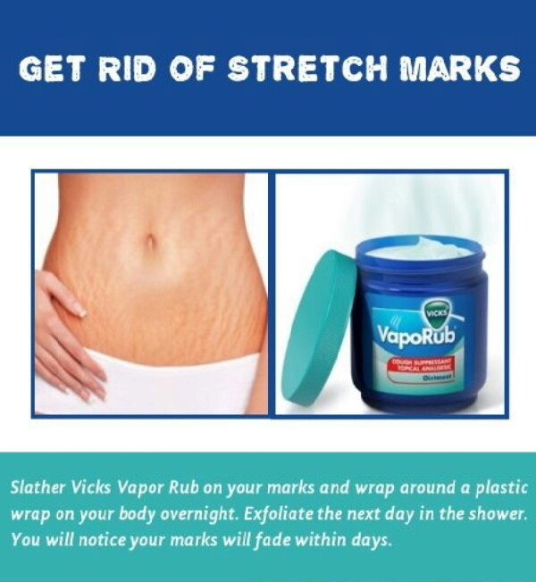 How to Get Rid of Stretch Marks Get Rid of Stretch Marks