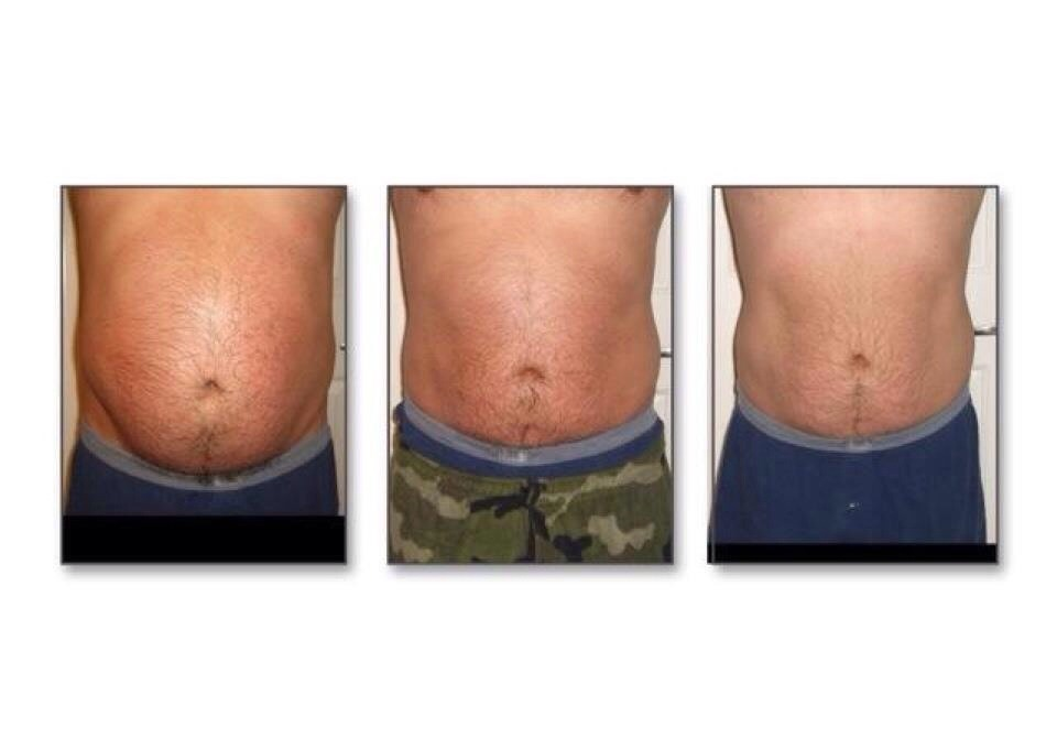 how to get rid of stretch marks and tighten skin