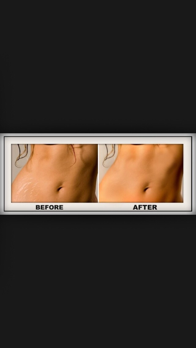 Remove Stretch Marks 👍