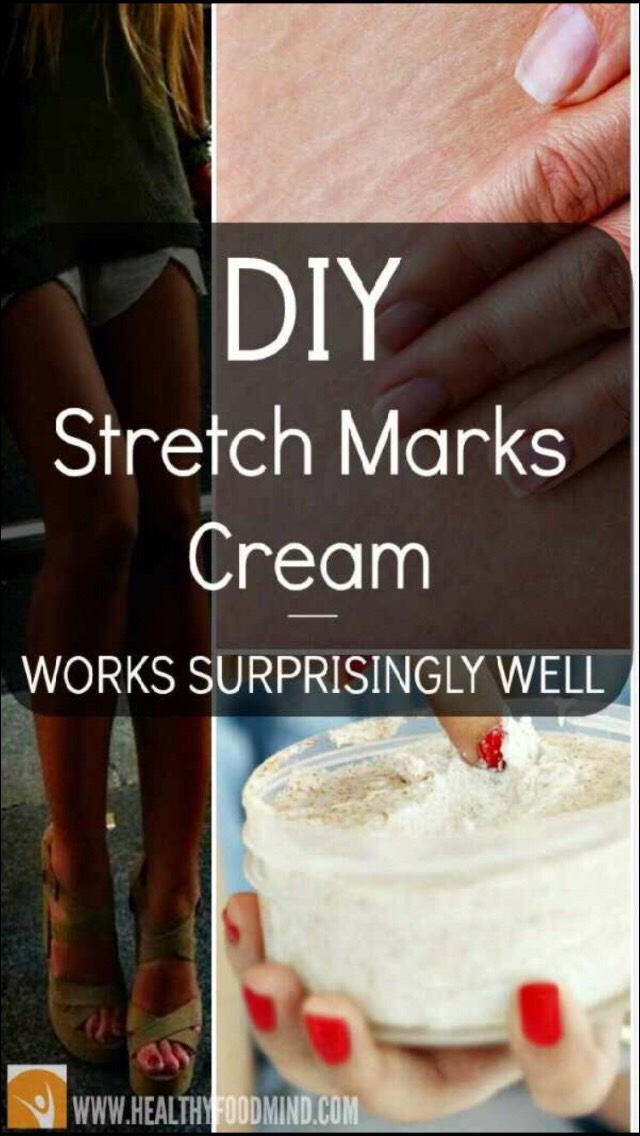 DIY Stretch Cream Mark