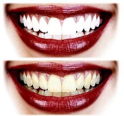 18 Home Remedies To Whiten Teeth