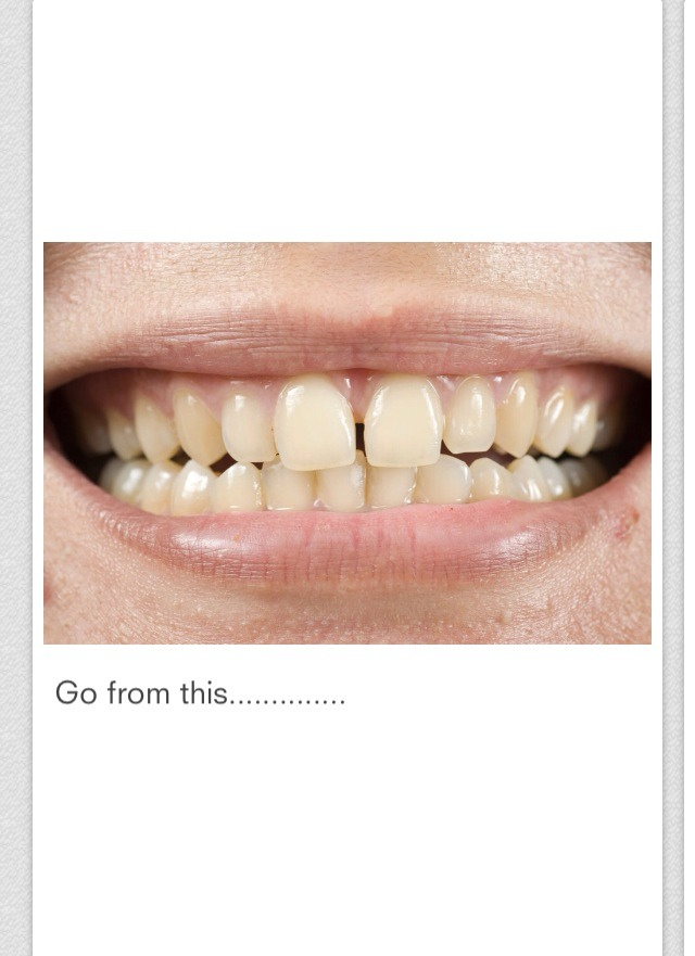 Diy Tooth Whitener ( Recommended By Dr. Oz)