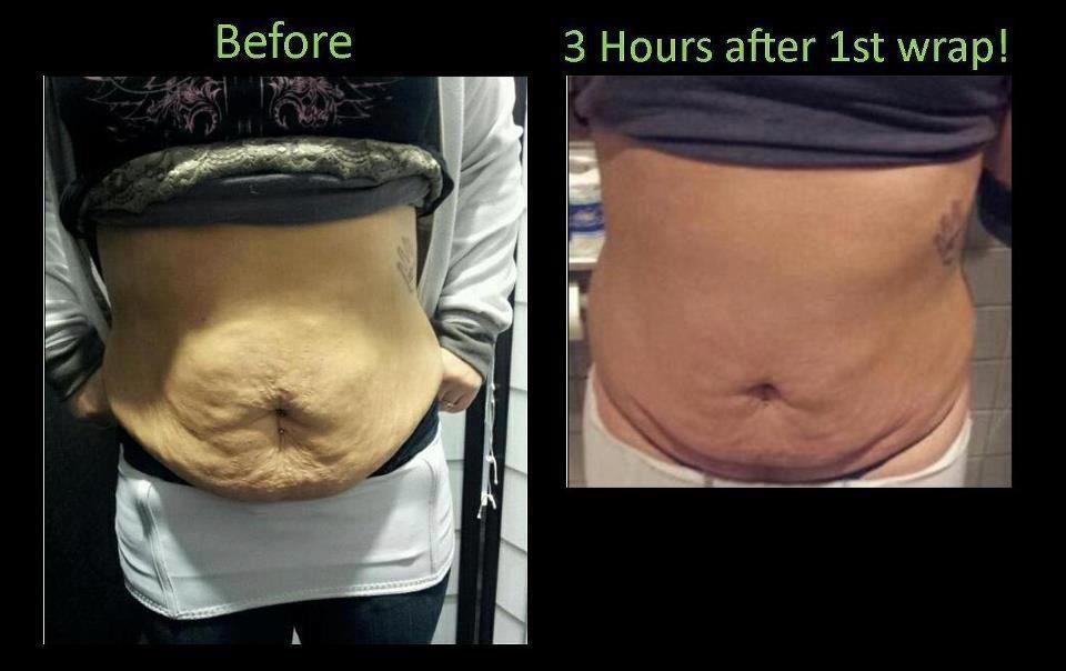 Loose Excess Skin Off Your Belly Fast After Pregnancy ...