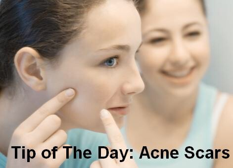 how to get rid of acne scars fast with honey