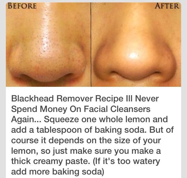 Diy Blackhead Remover Really Works Trusper