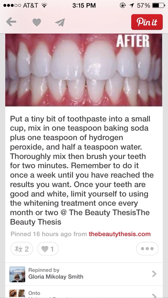 How To Get White Teeth Fast Easy Strong Trusper