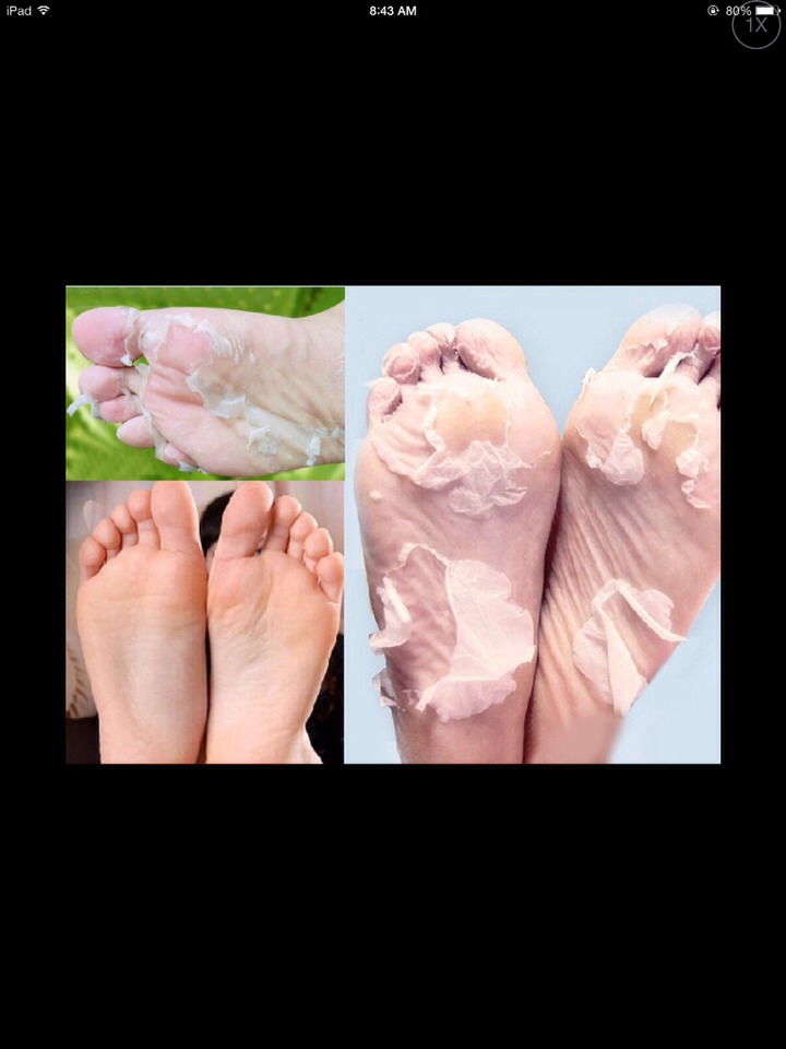 How To Get That Nast Dry Skin Off Your Feet!!!