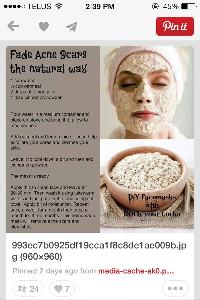 Acne Scar Remover The Natural Way