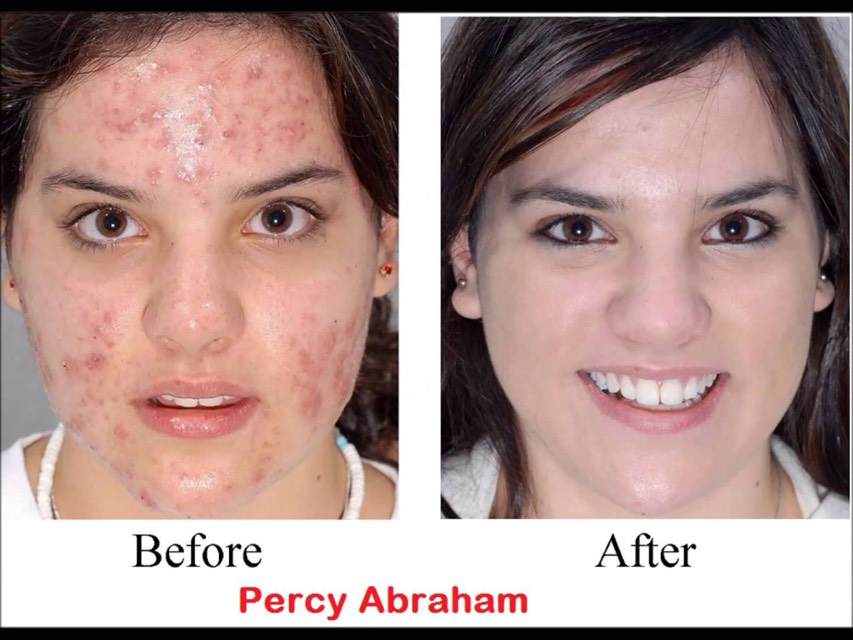 Get Rid Of Acne Forever!!