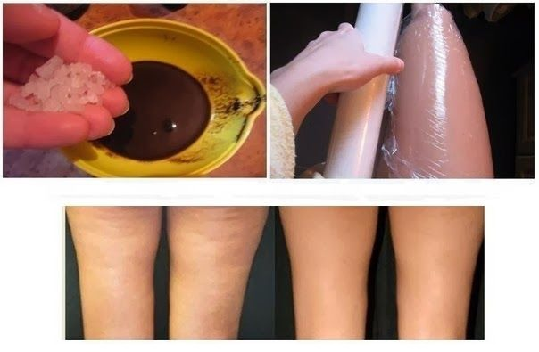 How to Get Rid of Cellulite with Coffee🙋