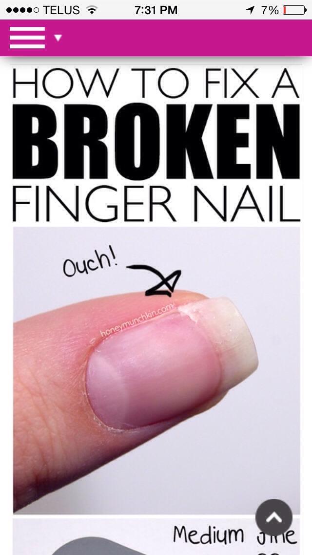 Fix Ur Broken Nail 😃