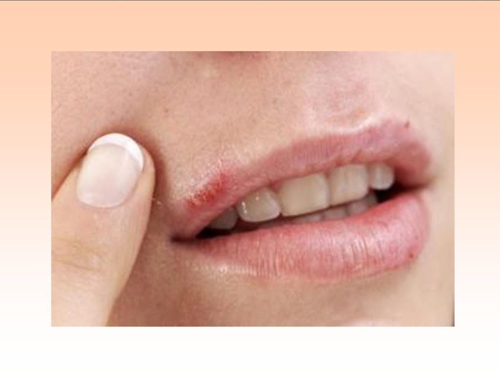 how to get rid of cold sores quick and easy