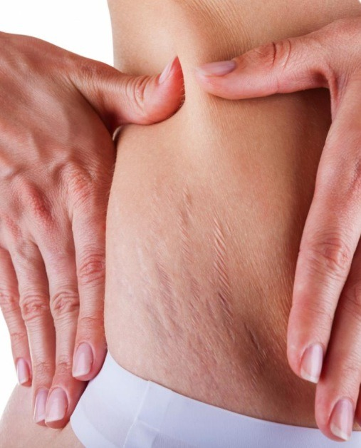 Get Rid Of Stretch Marks?