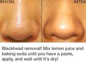 How To: Get Rid Of Blackheads! #tipit