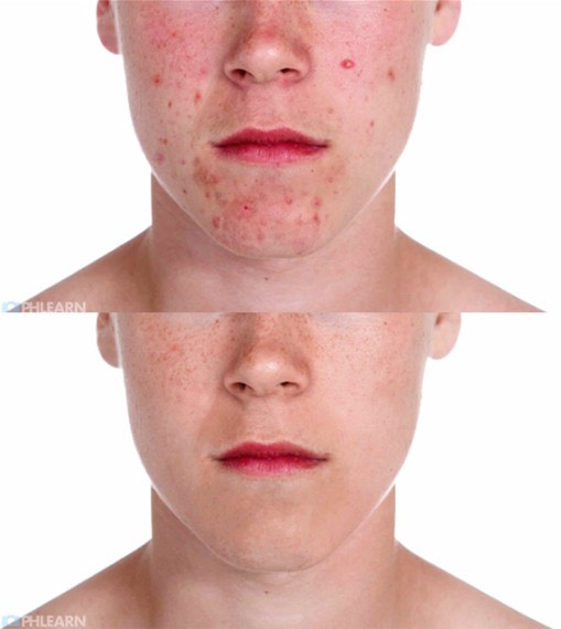 PERMANENTLY get rid of ACNE forever...