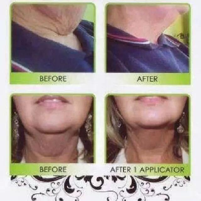 Natural Ways To Tighten Loose Abdominal Skin