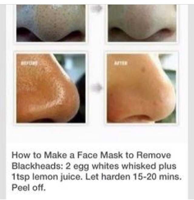 How To Remove Blackheads Hear Is The Solution Diy Trusper