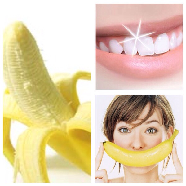 banana peel as whitener Teeth whitening: it can cost you thousands of dollars at the dentist's or it can be free if you try this cool trick what do you need a banana peel, a toothbrush and toothpaste.