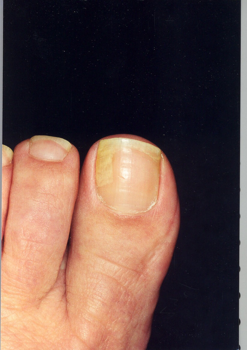 Yellow Toenails And Diabetes: What Are Your Feet Trying To Tell You