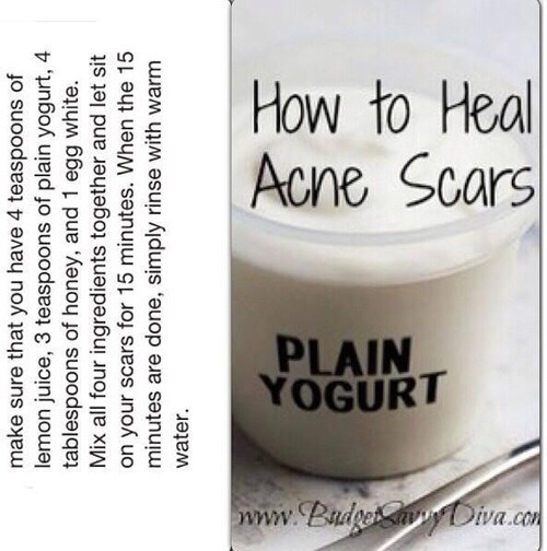 how to permanently get rid of acne scars naturally