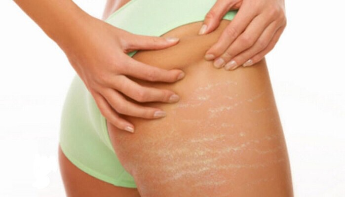 Naturally Ways To Get Rid Of Stretch Marks At Home