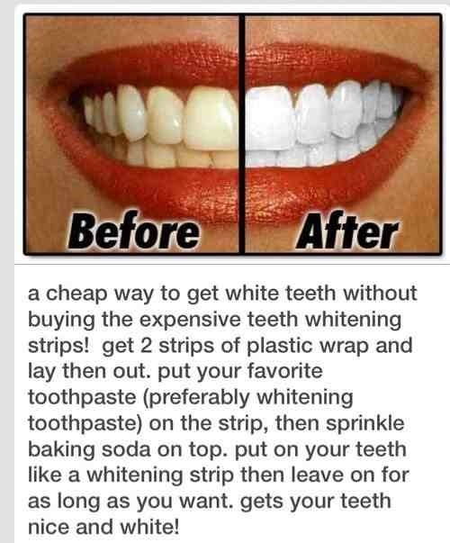 Wedding White Teeth: Whiten Teeth Evenly