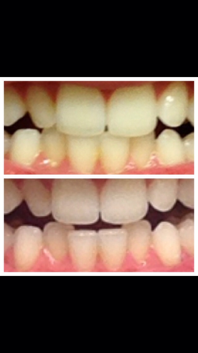 Whiten Your Teeth In One Week