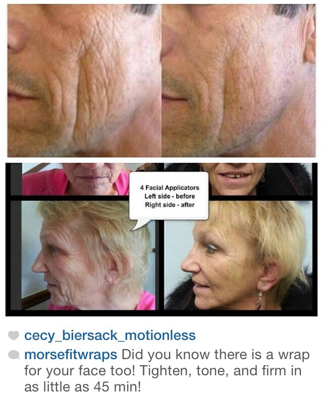 Face Lift Without The Doctor!
