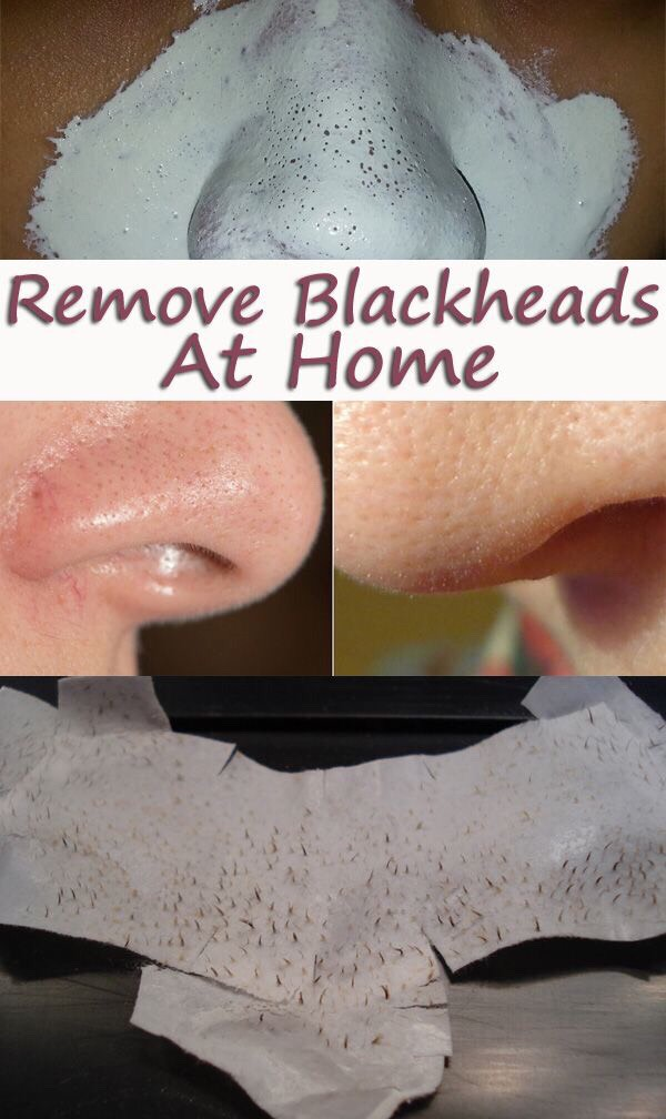 """REMOVE BLACKHEADS AT HOME"""
