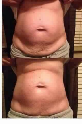 Tighten And Tone In 45 Minutes Get Skinny Wraps On Sale