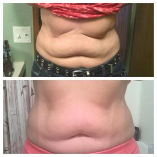 Get Your Skinny Wraps Tighten And Tone With Results In 45 Minutes! Get Your Sexy Back!