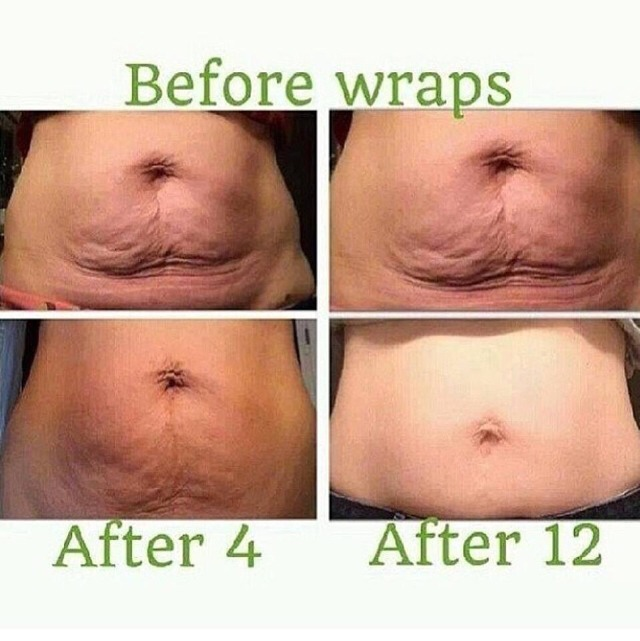 Have You Tried That Crazy Wrap Thing? Get Toned, Tightened And Firm In As Little As 45 Mins!