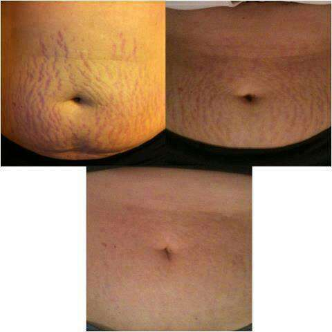 natural way to reduce stretch marks!!