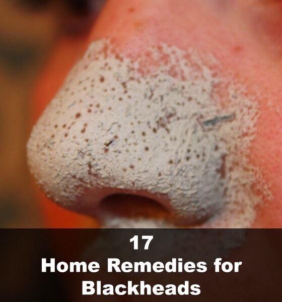 ❤️ 17 Ways To Get Rid Of Blackheads!!! ❤️