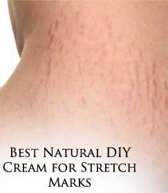 Best Natural DIY Cream For Stretch Marks