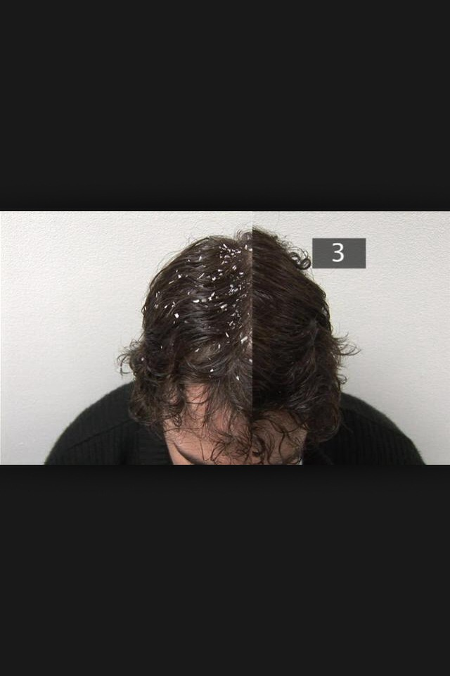how to get dandruff off face