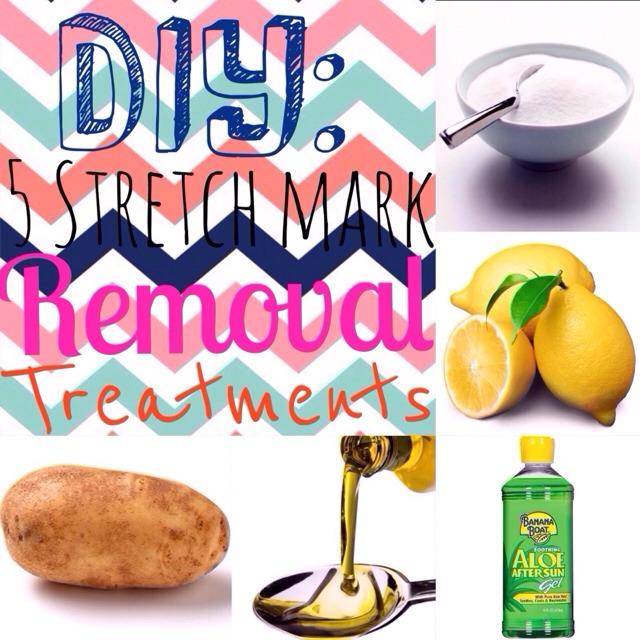 DIY: 5 Stretch Mark Removal Treatments!