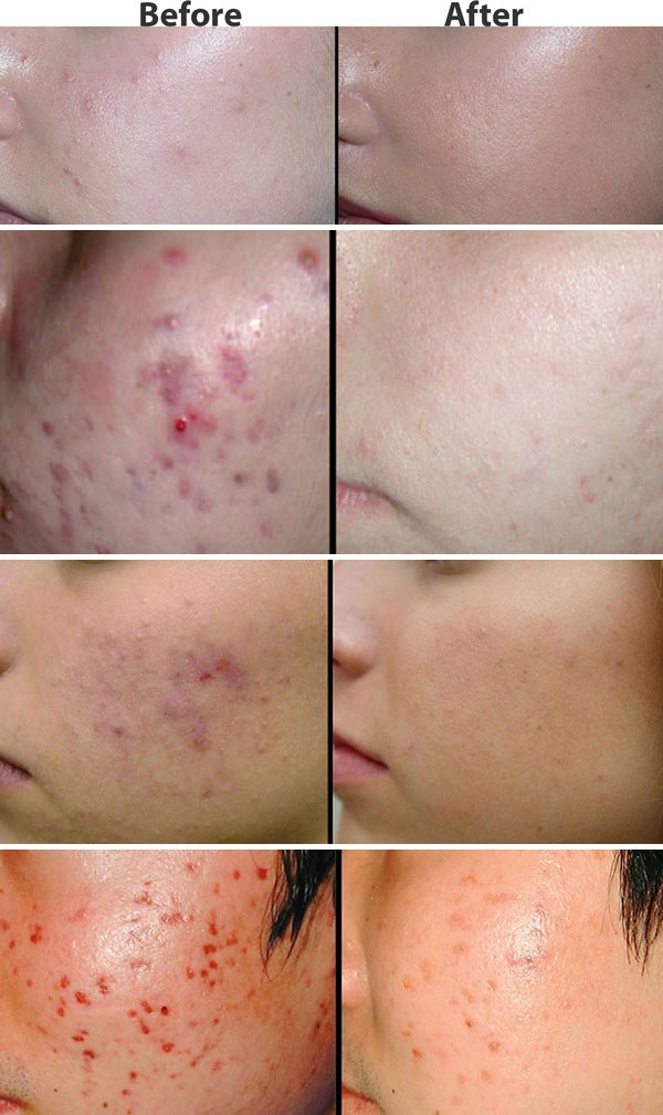 Acne tips, treatments and advice