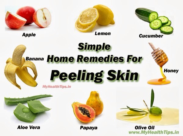 Home Remedies For Sunburn Itch