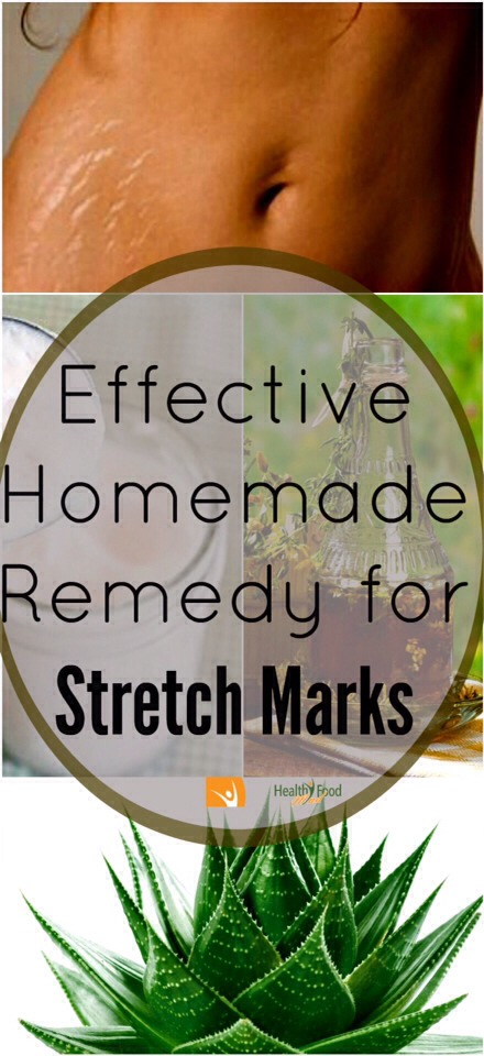 🔸Effective Homemade Stretch Mark Remedy #2⃣! Works Wonders!🔸
