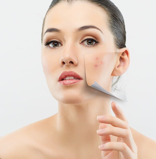 Get Rid Of Pimples And Spots Overnight