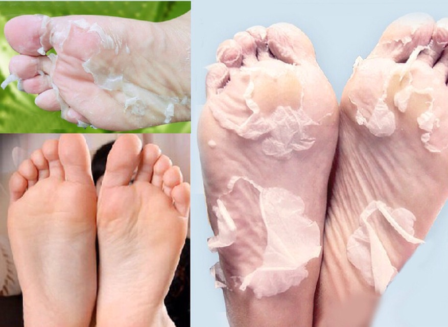 Wipe That Dead Skin Right Off Your Feet 🆒